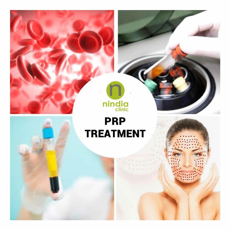 Platelet Rich Plasma - PRP